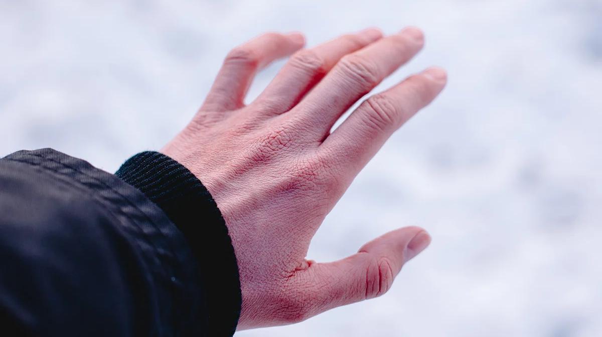 Symptoms of frostbite